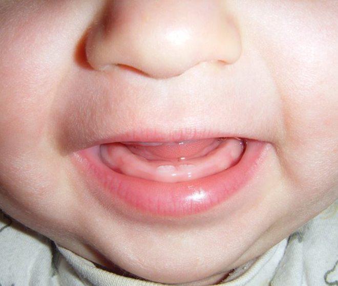 primeros_dientes